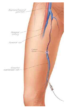 catheter insertion in thigh vein for VNUS EVLT