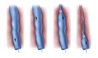 The Principle of VNUS EVLT catheter closure of the varicose vein